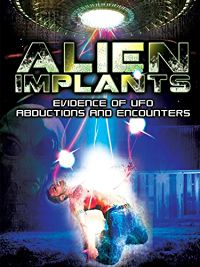 ALIEN IMPLANTS: EVIDENCE OF UFO ABDUCTIONS AND ENCOUNTERS のサムネイル画像